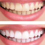 How To Use Teeth Whitening Toothpaste Properly