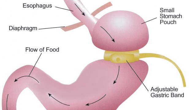 Gastric Band Surgery – Who Can Get Lap Band Done?