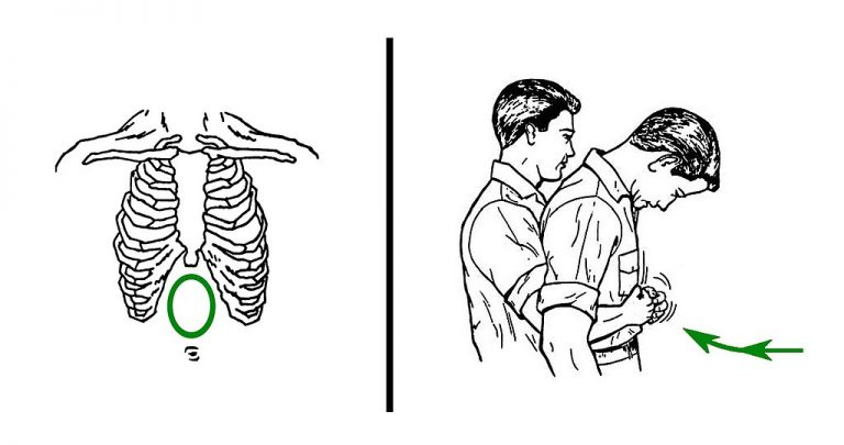 Choking or Gagging – How to Distinguish Between the Two